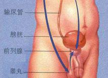 前列腺囊肿的危害